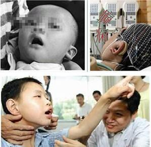 癫痫病的早期症状是_早期癫痫病会有什么症状?_上海新科医院精神科